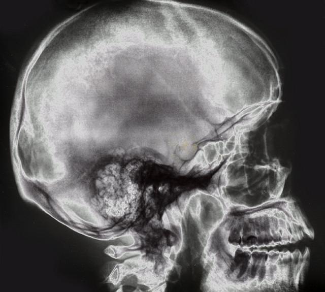 skullXraySkull
